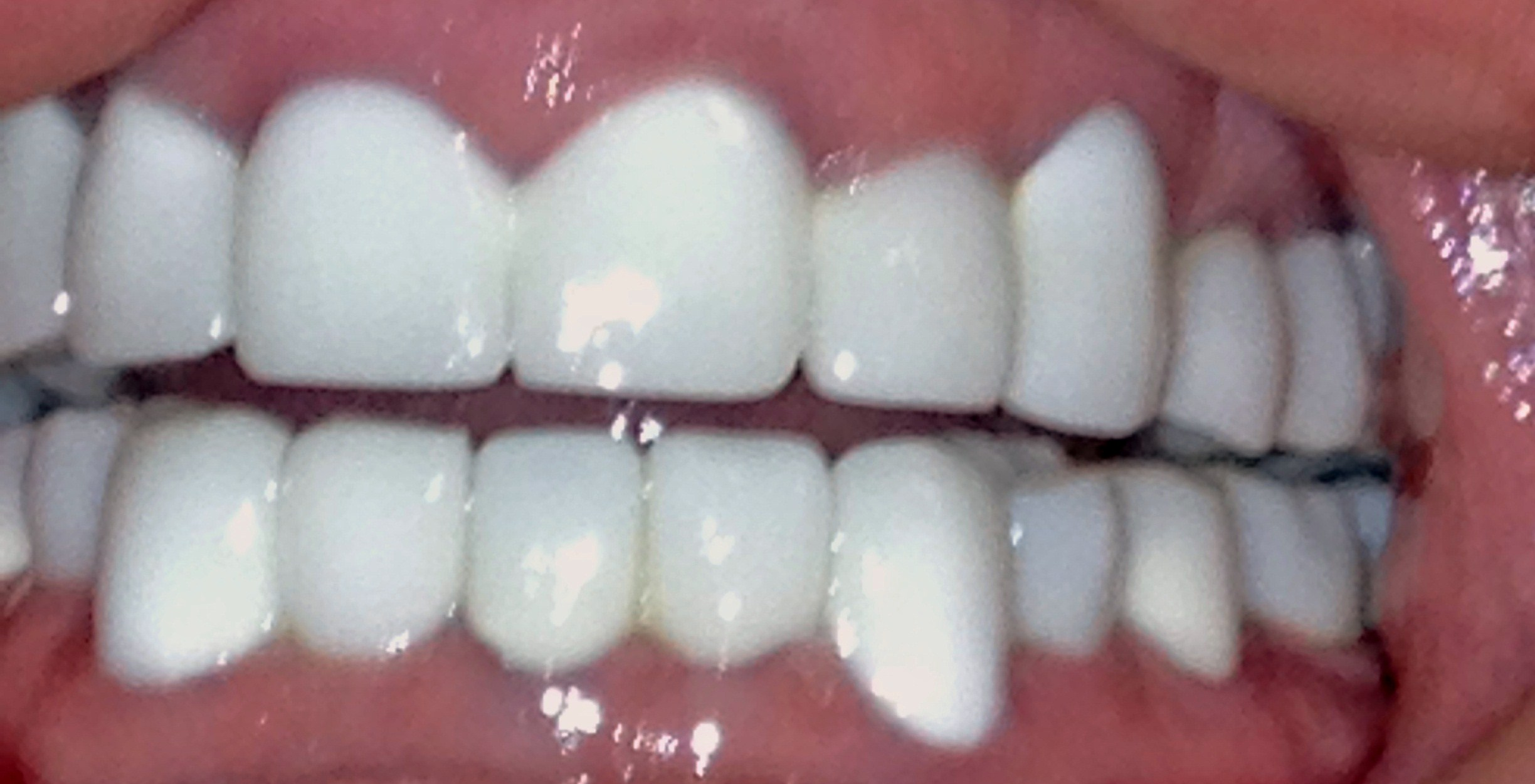 Mexicotraveler S Weblog Helping Promote Low Cost Dental